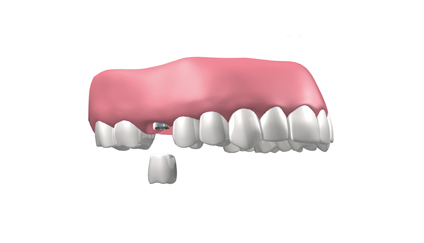 implantes dentales en Coslada