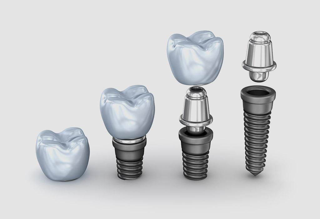 Implantología dental en Coslada
